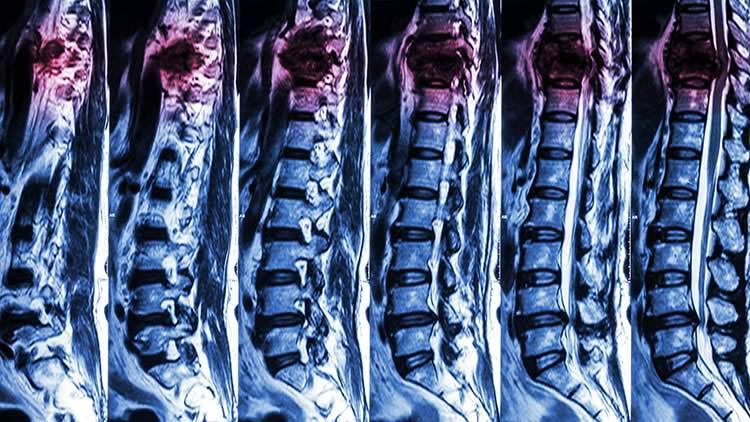 Medical negligence spinal injury